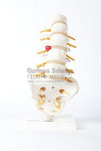 Lower Back Spinal model