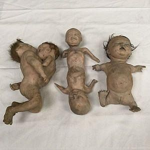 Conjoined babies and thalidomide baby